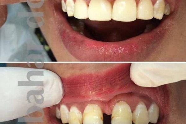 دندانپزشکی بیهوشی یزد | دندانپزشکی خواب یزد | دندان پزشکی کودکان یزد | کلینیک بهار