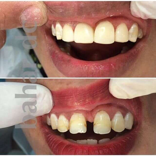 دندانپزشکی بیهوشی یزد   دندانپزشکی خواب یزد   دندان پزشکی کودکان یزد   کلینیک بهار